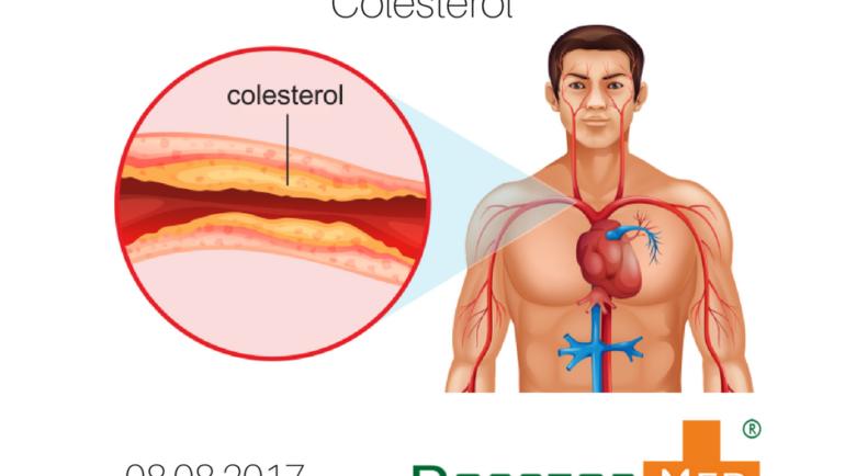 10 Alimentos que ajudam a diminuir o colesterol ruim